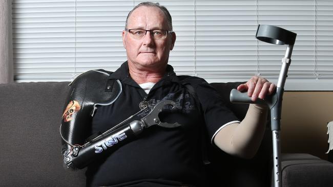 นาย  Doug Stubbs ประสบอุบัติเหตุจนต้องสูญเสียแขนขวา, ได้รับบาดเจ็บทั้งภายนอกและภายใน แต่รัฐบาลไม่ยอมรับว่าเขาเป็นคนพิการ : ภาพชั่วคราวจากนสพ. The Courier Mail