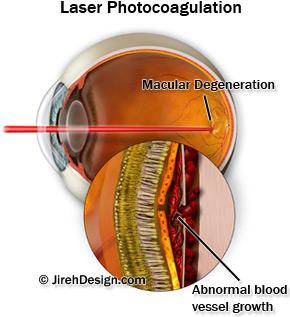 Ocular histoplasmosis - a patient's illustrated guide