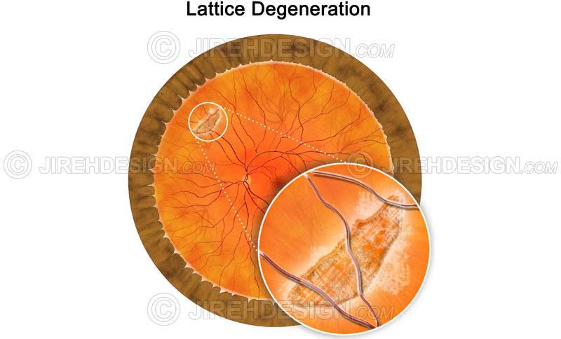 Vitreous Degeneration Treatment