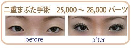 整形・美容のA ‐RISAクリニックで目元の整形も安心