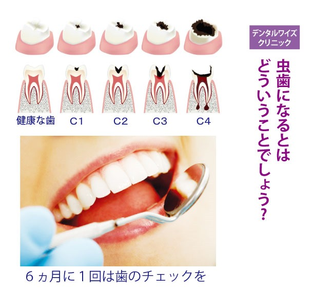 虫歯になるとは どういうことでしょう?