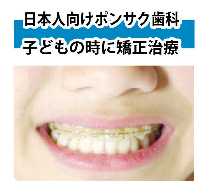 子どもの歯科矯正の相談もどうぞ