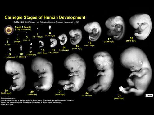 Image result for stages of conception to birth