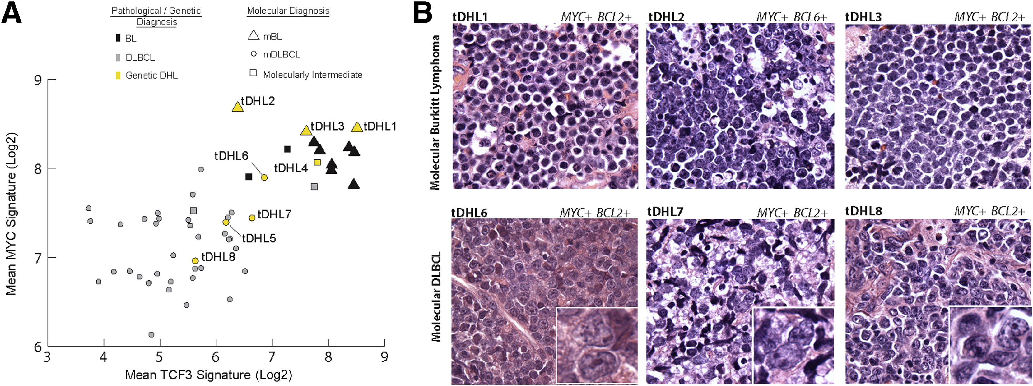 Molecular Classification Of Myc Driven B Cell Lymphomas By Targeted Gene Expression Profiling Of