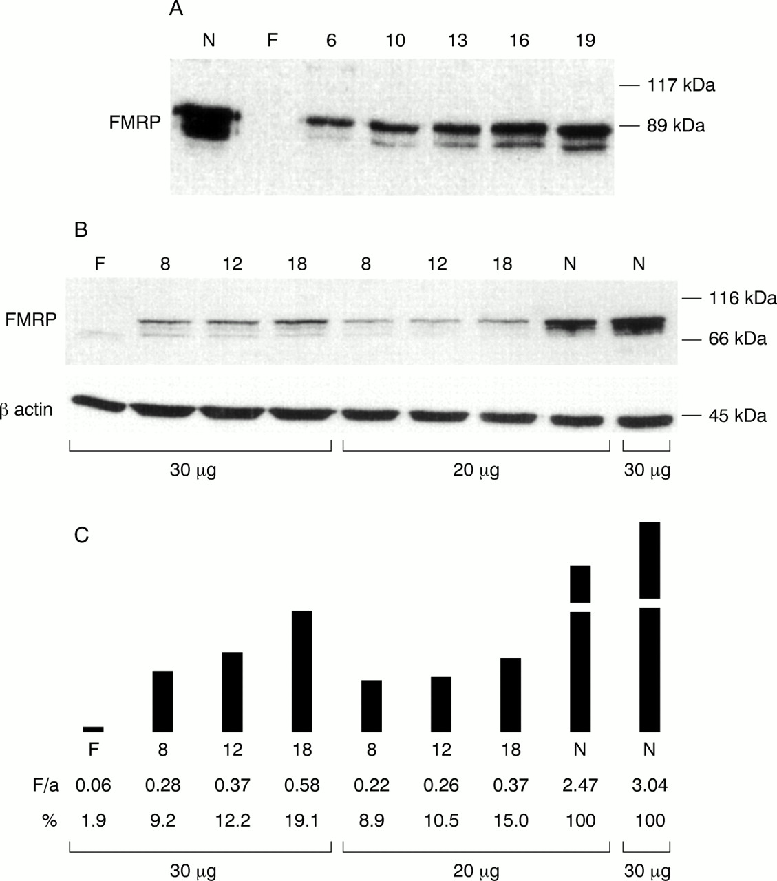 Increase of FMRP expression, raised levels ofFMR1 mRNA