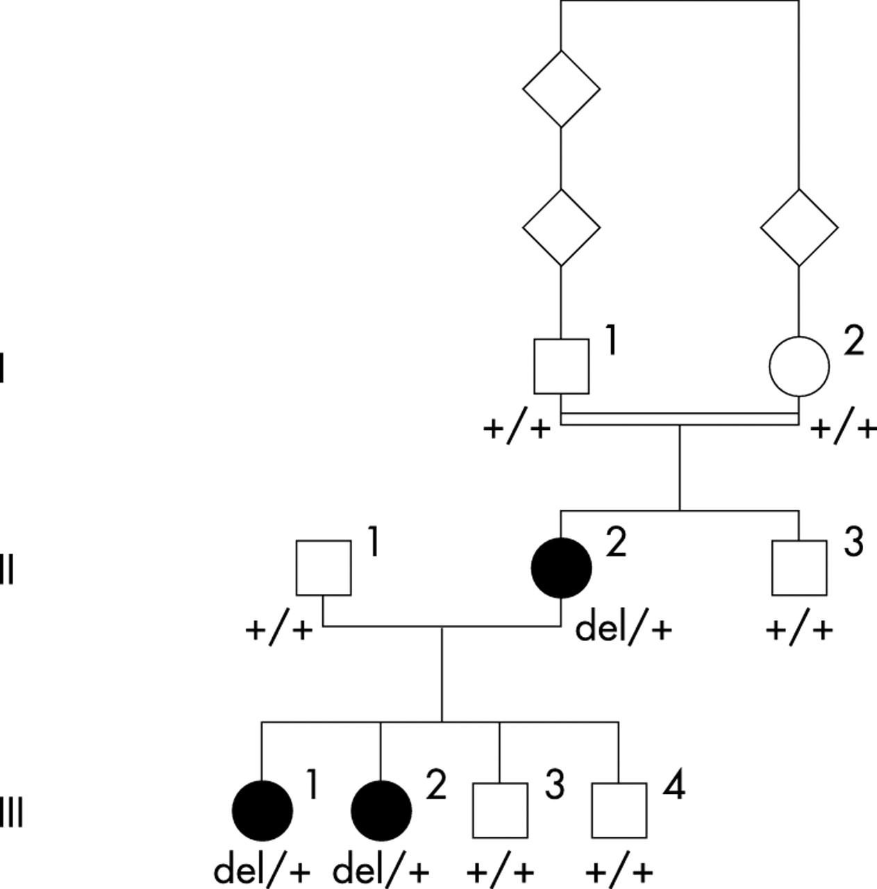 Evidence Of Autosomal Dominant Leber Congenital Amaurosis Lca Underlain By A Crx Heterozygous