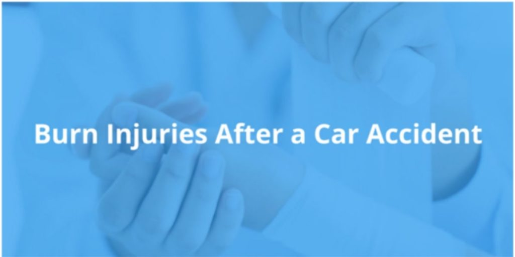 Burn Injuries After Car Accident