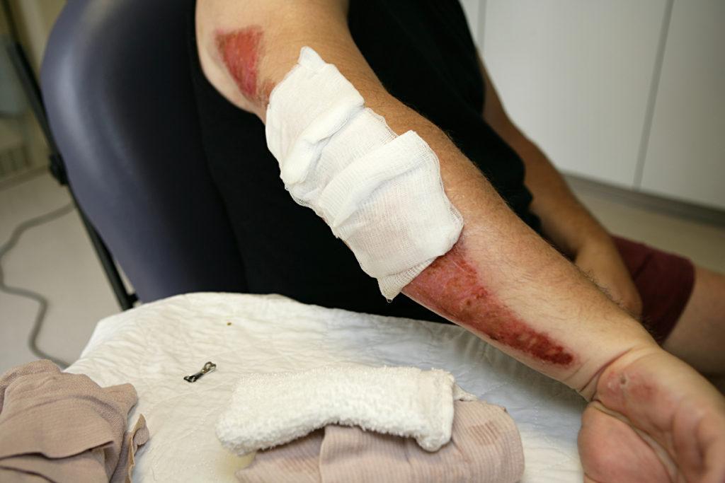 What is road rash?