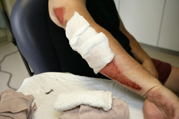 Medium photo closeup of a bandaged arm, with red road rash visible around the bandages, symbolizing the need for a car accident lawyer.