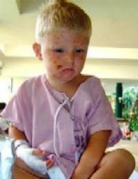 La foto de Hannes en el hospital que circuló por Internet. (Foto: Redes)