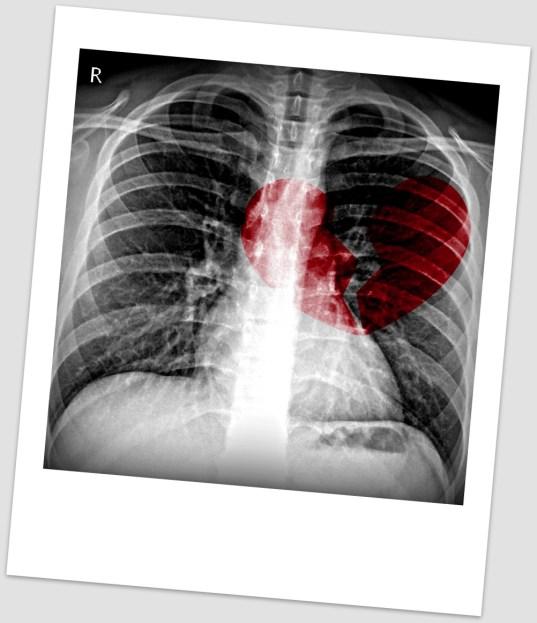 Image result for scan of a broken heart