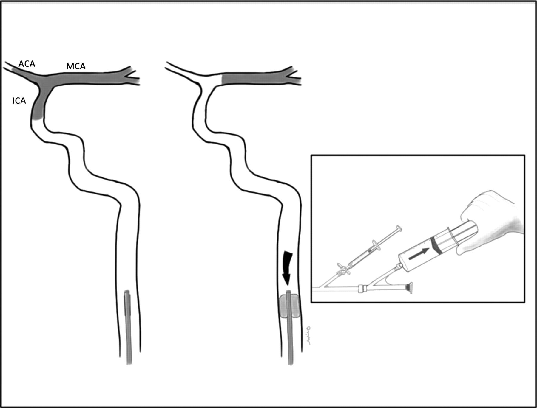 E-077 Manual aspiration thrombectomy through balloon