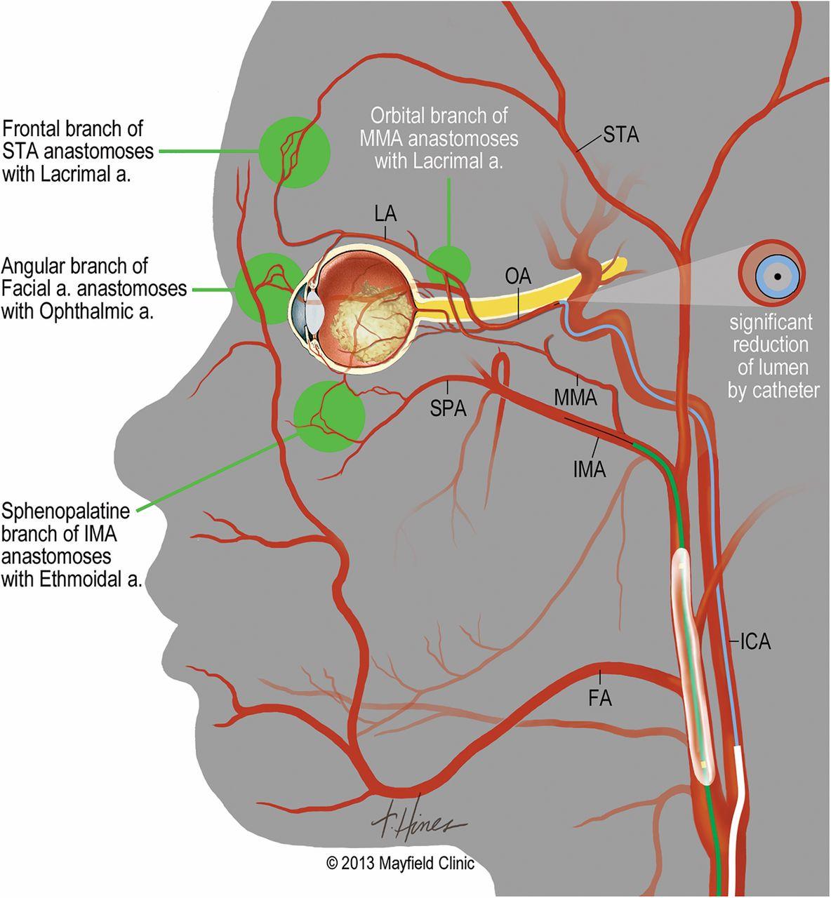 carotid artery diagram fender telecaster wiring seymour duncan adjunctive techniques for optimization of ocular hemodynamics in children undergoing ophthalmic ...