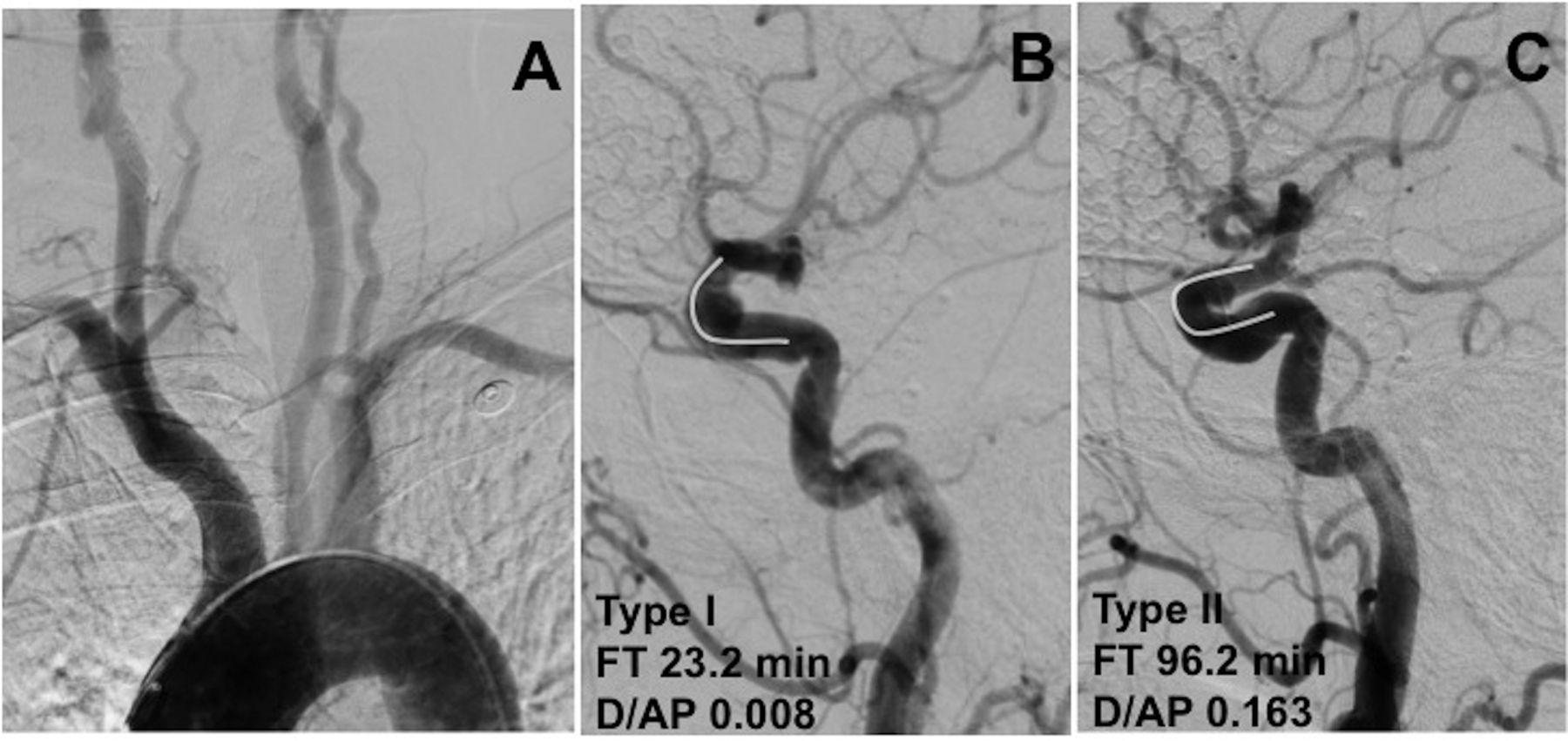 Classification of cavernous internal carotid artery