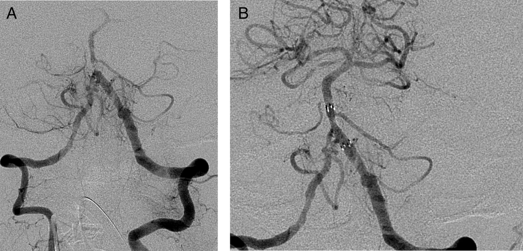 Endovascular treatment for AIS with underlying ICAD