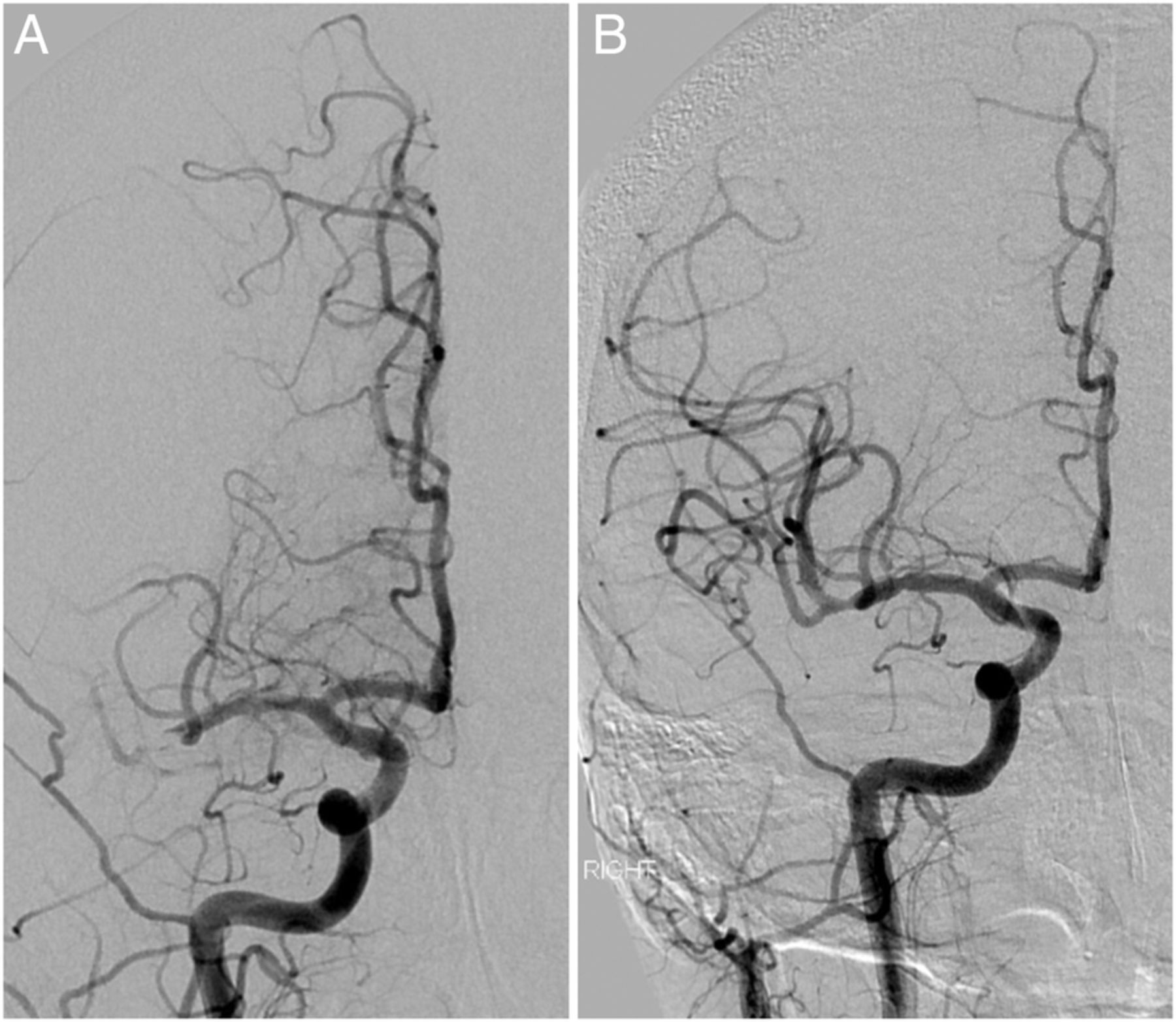 A case of right middle cerebral artery 'tendonectomy