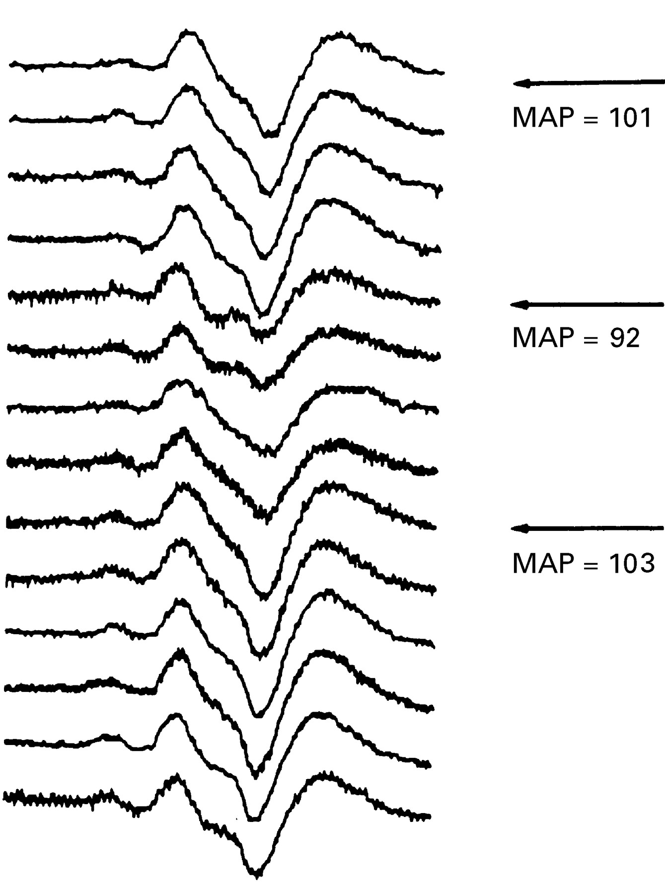 The use of electrophysiological monitoring in the