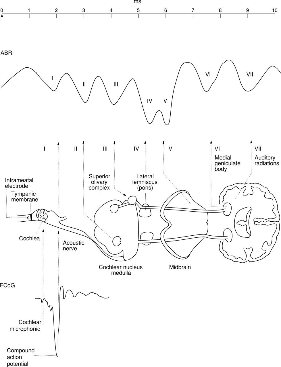 Intraoperative monitoring during surgery for acoustic