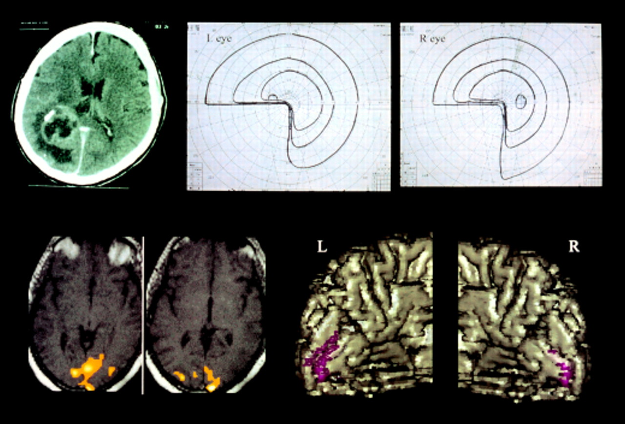 Perimetric Visual Field And Functional Mri Correlation Implications For Image Guided Surgery In