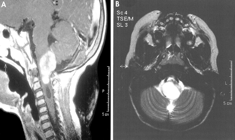 Trigeminal autonomic cephalalgia-tic-like syndrome ...