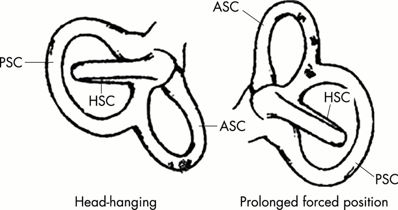 Treatment of anterior canal benign paroxysmal positional