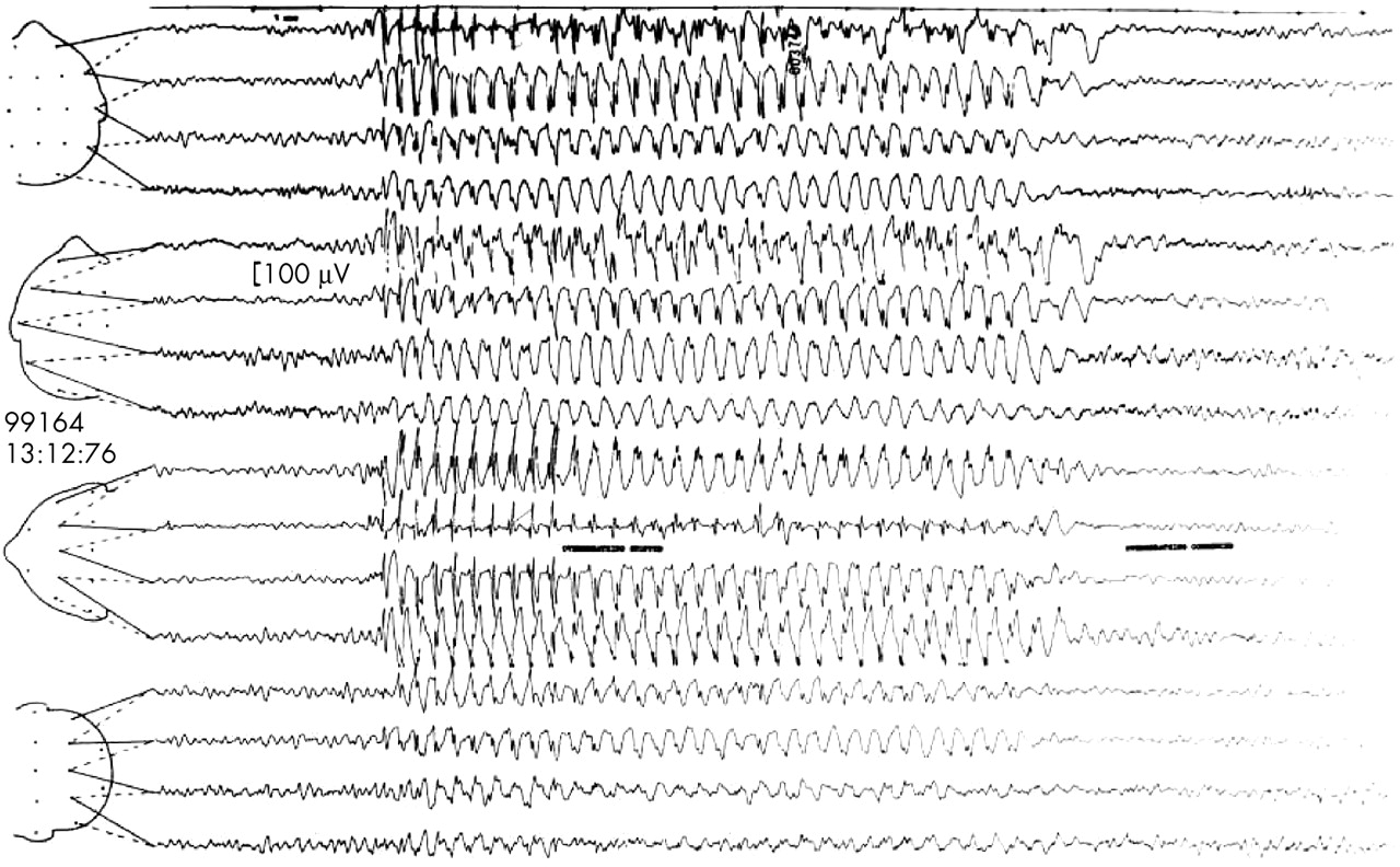 EEG in the diagnosis, classification, and management of