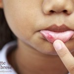 Let 'em Suffer: Canker Sores are a Weapon