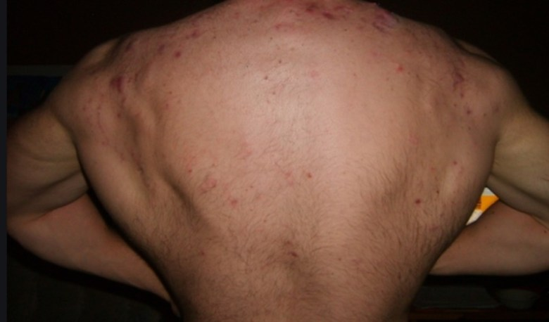 acne on body due to anabolic steroids