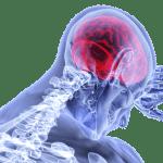 Car Accident Traumatic Brain Injury