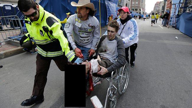 boston-marathon-man-leg-destroyed