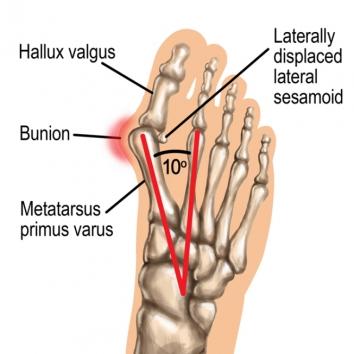 digital illustration by John Fraser showing foot with bunion, medical illustration, foot anatomy, foot bones, bunion