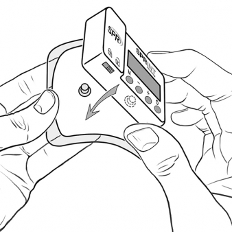 digital illustration by John Fraser from instructional manual for the Sprint PNR system by SPR Theraputics, stimulator, instruction manual, medical illustration