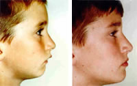 Horizontal Growth Improves Faces This boy received Orthotropics®. Although his front teeth stuck out both jaws were encouraged to grow forward. Few other techniques achieve this because they pull the teeth back. Horizontal growers retain naturally straight teeth for a life time.