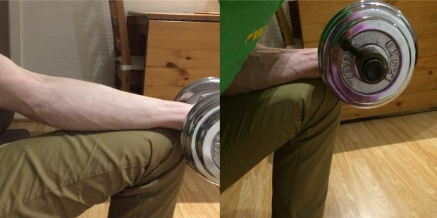 angle of eccentrics for climber's elbow