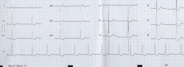 Atrial fibrillation with slow ventricular response