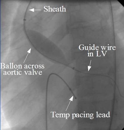 Balloon aortic valvotomy (BAV)