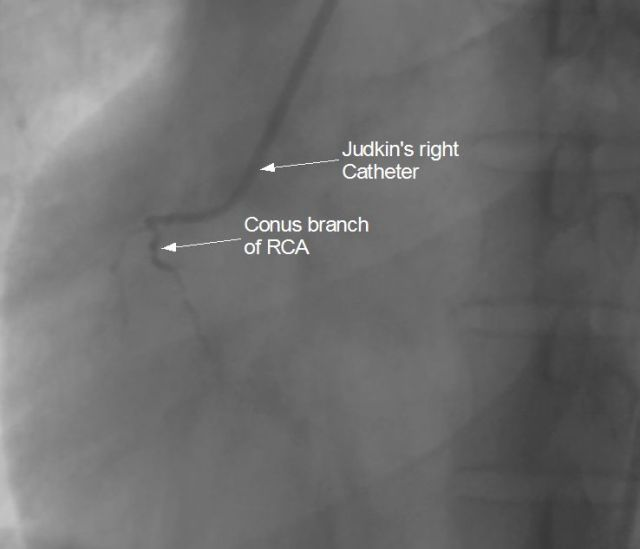 Catheter slipping into conus branch during right coronary angiography