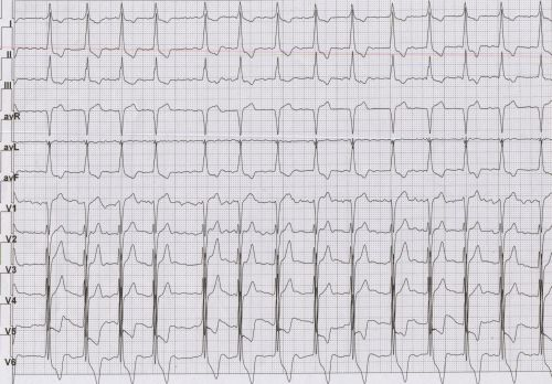 Hypertrophic cardiomyopathy with atrial fibrillation