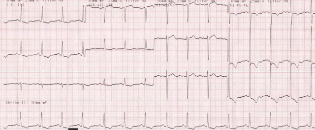 Severe left ventricular hypertrophy with strain pattern in severe aortic stenosis