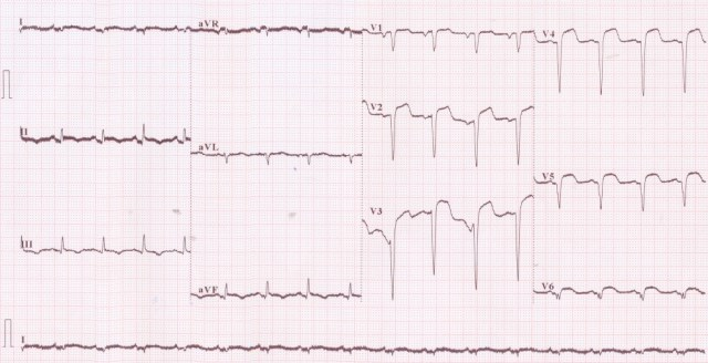 Anterior wall myocardial infarction and 50 Hz interference