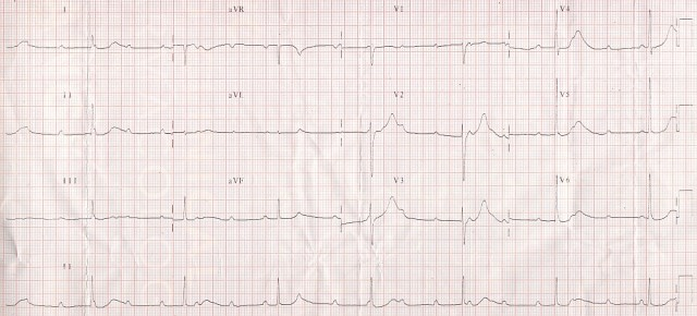 Complete heart block - narrow QRS