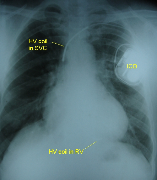 Implantable defibrillator high voltage coils on X-ray chest PA view - annotated
