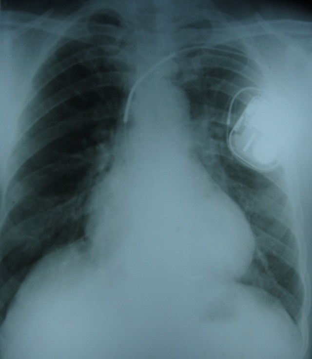 Implantable defibrillator high voltage coils on X-ray chest PA view