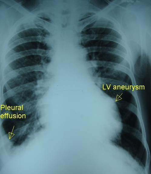 Left ventricular aneurysm and right pleural effusion - X-ray chest PA view