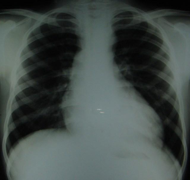 Ascending aortic dilatation