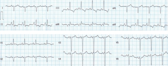 Right atrial overload and right ventricular hypertrophy