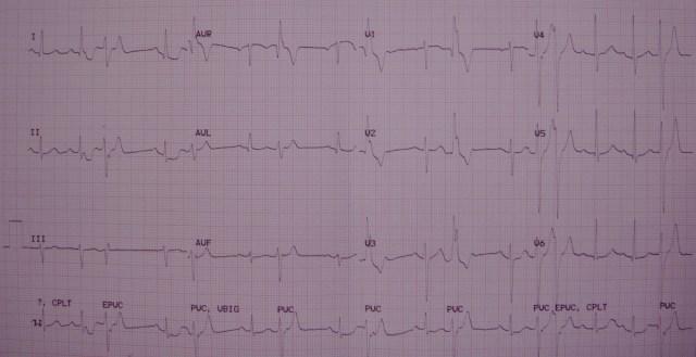 Ventricular ectopic couplets