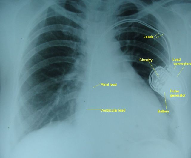 Dual chamber pacemaker with leads on a chest x-ray