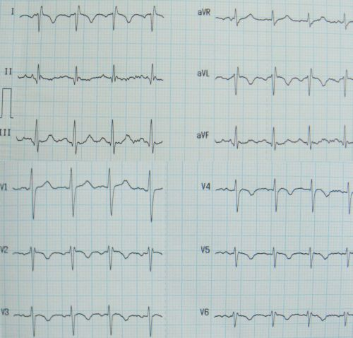 ECG in Kartagener's syndrome showing features of dextrocardia