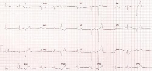 Ventricular ectopic beats